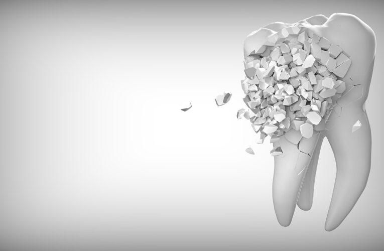 Så förhindrar du tandgnissling